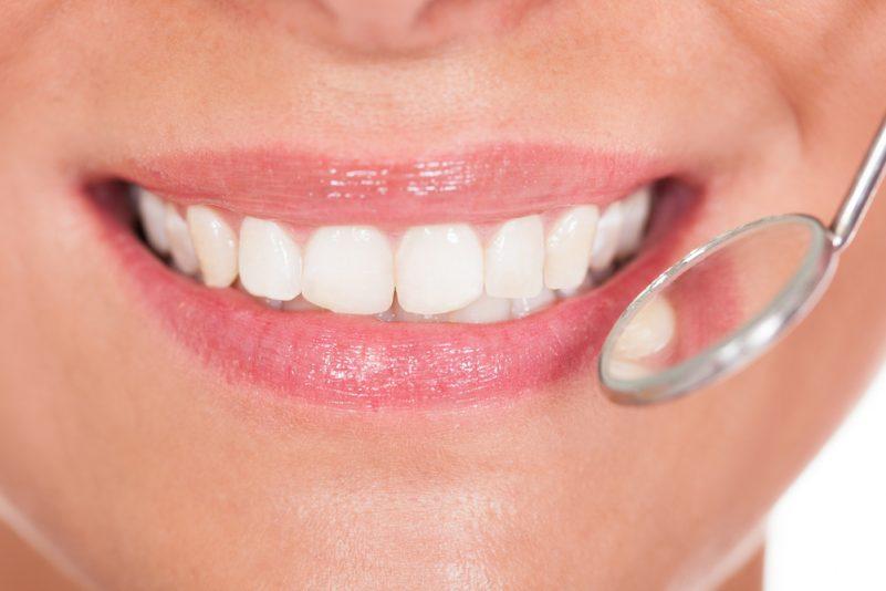 endodoncia en clínica Dental Adalia