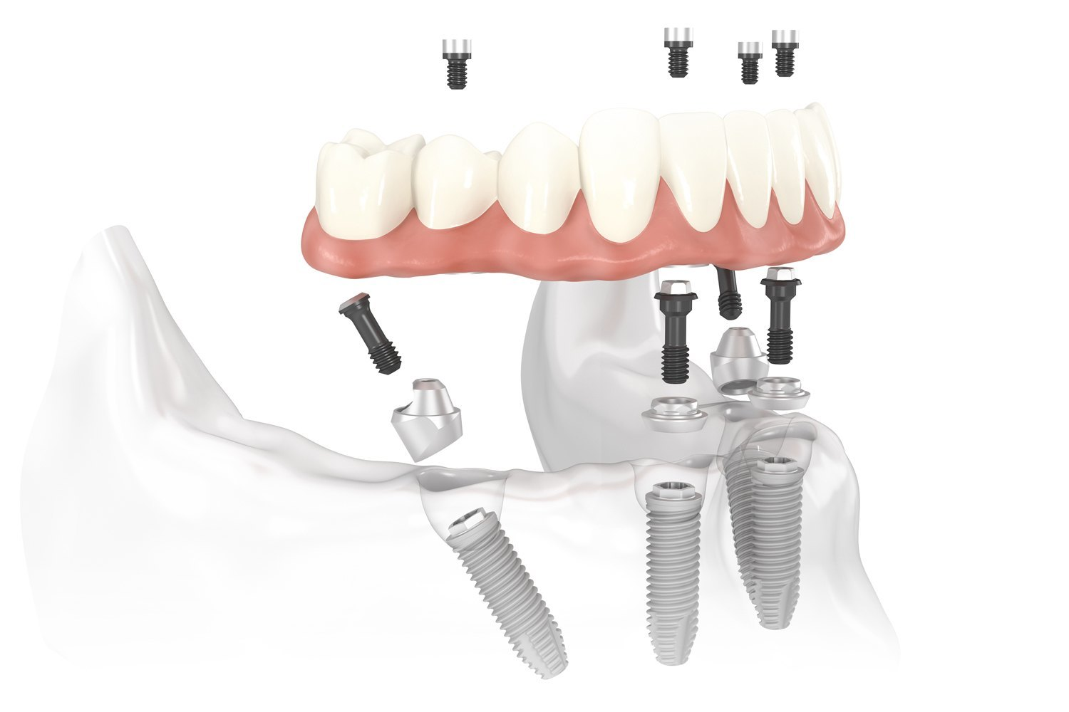 implante-dental-3-all-on-4