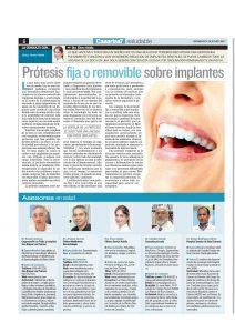 Prótesis fija o removible sobre implantes