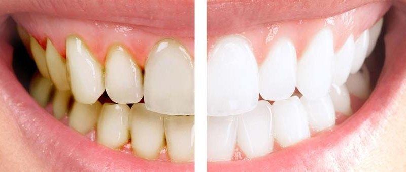 Blanqueamiento dental en Clínica Dental Las Palmas
