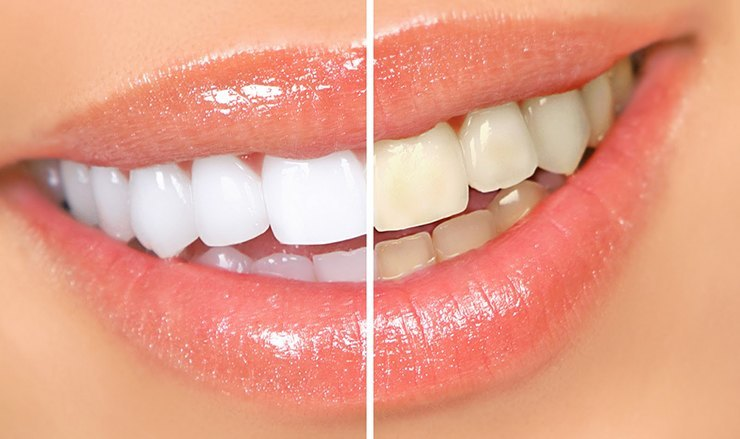 Campaña de blanqueamiento dental en verano