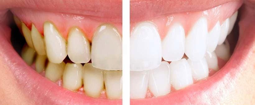 Blanqueamiento dental en verano