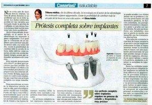 canarias7_8-12-2013-protesis-completa-sobre-implantes