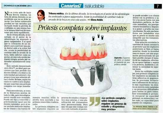 Prótesis completa sobre implantes dentales