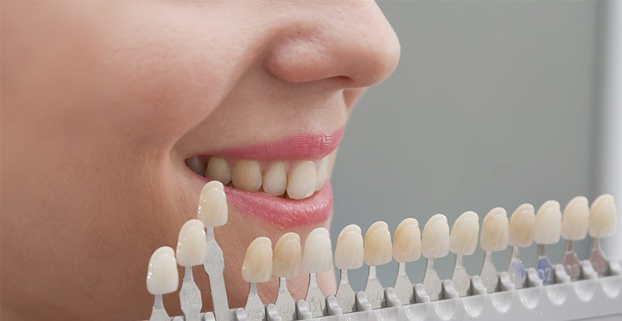 carillas dentales - estética dental - Clínica Dental Adalia