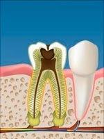 Imagen de implantes dentales con tornillo en Las Palmas con Adalia Clínica Dental
