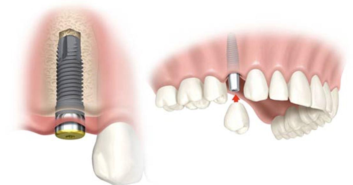 Luce sonrisa nueva con los implantes dentales en el día