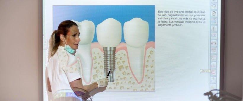 Sonríe libremente gracias a los implantes dentales en el día