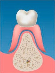 implantes-soporte_oseo_00