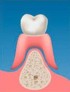implantes-soporte_oseo_01