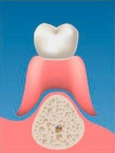 implantes-soporte_oseo_02