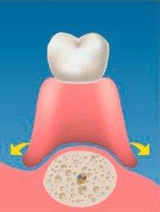 implantes-soporte_oseo_03